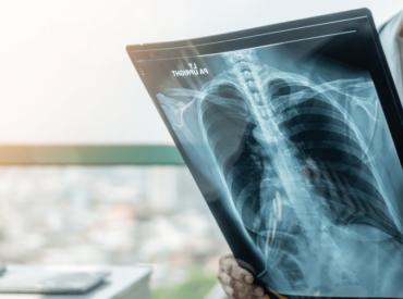 pulmonary_critical_care